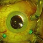 Ryc. 2. Obraz gałki ocznej podczas ppVe 25G