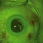 Ryc. 3. Obraz gałki ocznej bezpośrednio po ppVe 25G