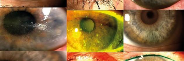 Co słychać na powierzchni oka?