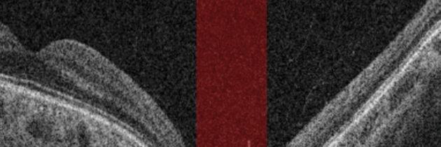 Zastosowanie optycznej koherentnej tomografii w diagnostyce i monitorowaniu jaskry