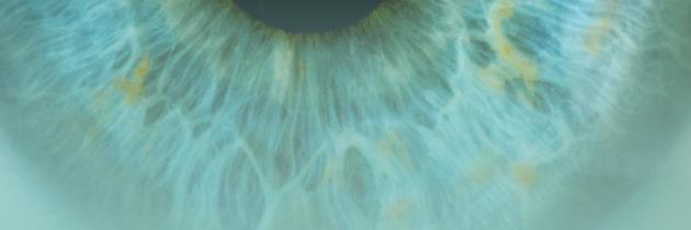 Zasady kontroli  i postępowania  po leczeniu  nowotworów  narządu wzroku