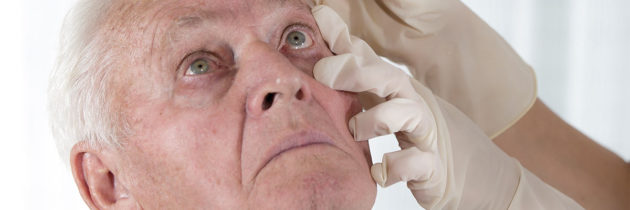 Terapia przeciwzapalna po operacji zaćmy